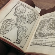 "At Hardin Medical Library--Eucharius Rosslin's ""The Birth of Mankinde"" printed in 1604 (this page illustrates babes in utero)"